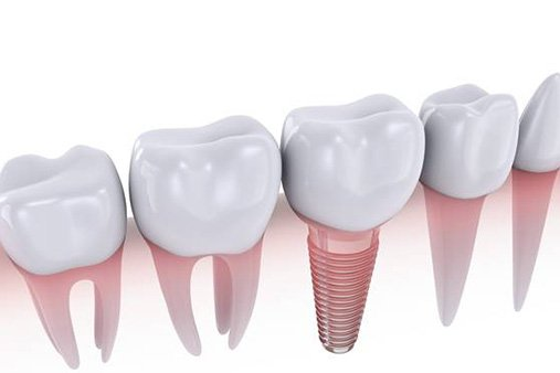 animated dental implant model