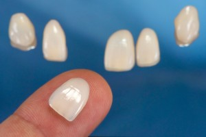 porcelain veneers in Fort Worth