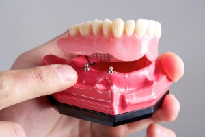 Your dentist for implant retained dentures in Fort Worth.