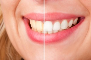 If you're trying to lighten your teeth with whitening toothpaste, you're probably wasting valuable time and money. Your dentist in Fort Worth explains why.